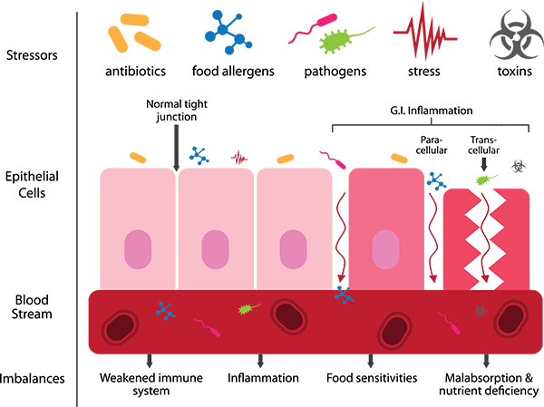 Leaky Gut and You: Part 3 of 3 – Leaky Gut and Autoimmune Diseases