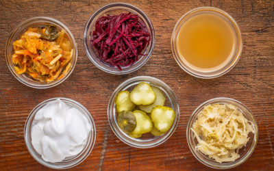 Good Foods for Gut Health – Part 1: Fermented Foods